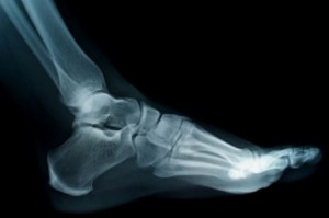 This is not my x-ray, my foot and ankle are far more fabulous than this!